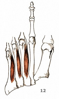 Zwischenknochenmuskeln an der Fußsohle: M. interossei plantares
